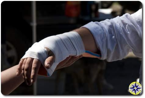 SAM splintted arm